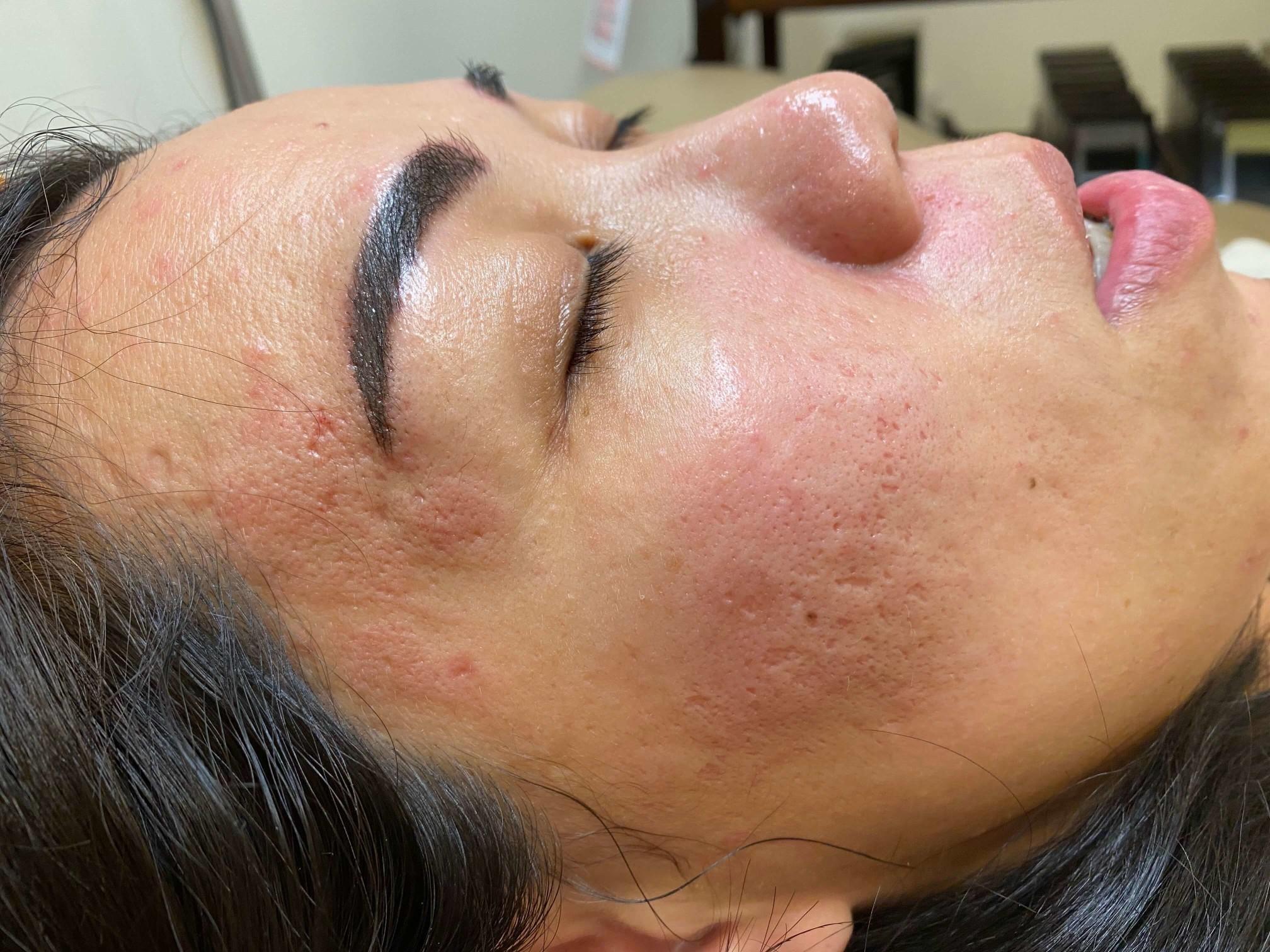歐式肌膚管理痘疤處理後當日