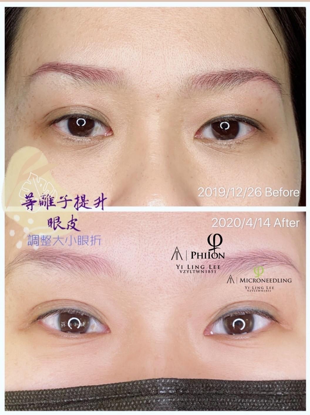 改善大小眼及雙眼皮折痕大小均稱度