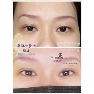 人人都可變成有神大眼、雙眼皮(非手術非不可逆)-雙眼皮下垂/大小眼